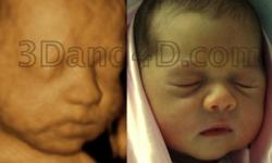 Are you expecting or know someone who is? Are you curious to know the gender, but are not certain yet? InfantSee4D Ultrasounds specializing in 3D/4D Imaging utilizes state of the art equipment when determining the genderof the growing fetus.